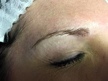 Micrbladed eyebrow procedure before